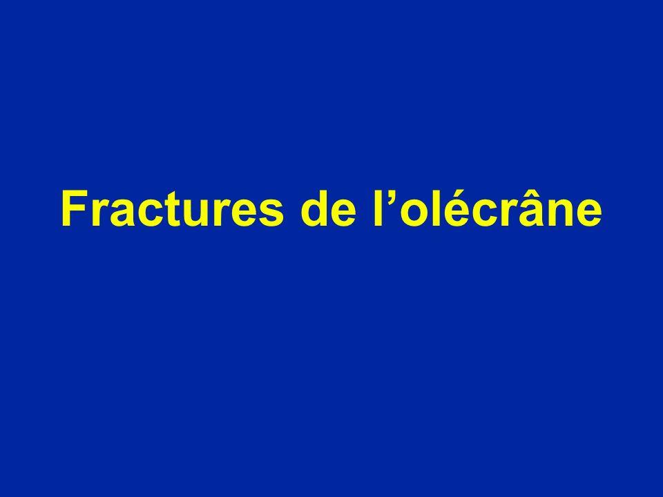 Fractures de l'olécrâne