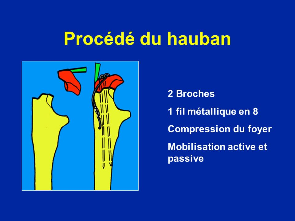 Procédé du hauban 2 Broches 1 fil métallique en 8 Compression du foyer