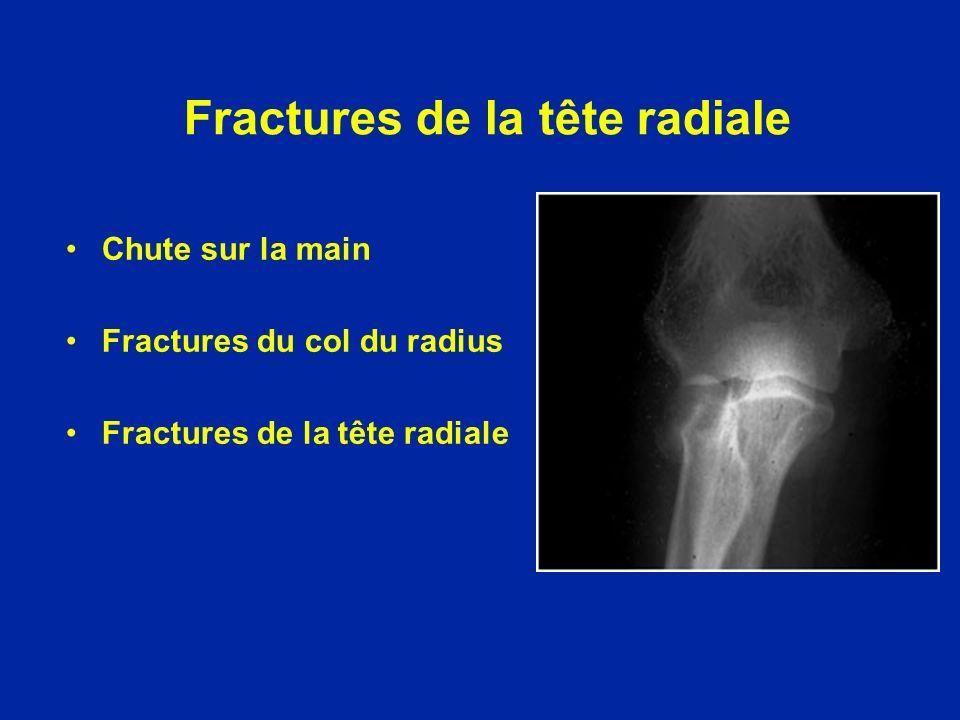 Fractures de la tête radiale