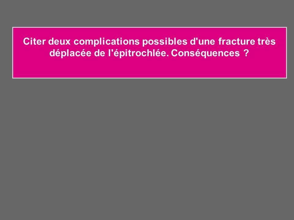 Citer deux complications possibles d une fracture très déplacée de l épitrochlée. Conséquences