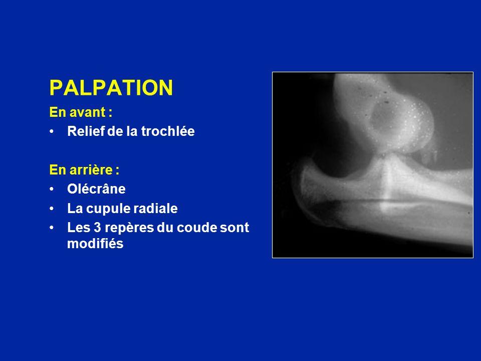 PALPATION En avant : Relief de la trochlée En arrière : Olécrâne