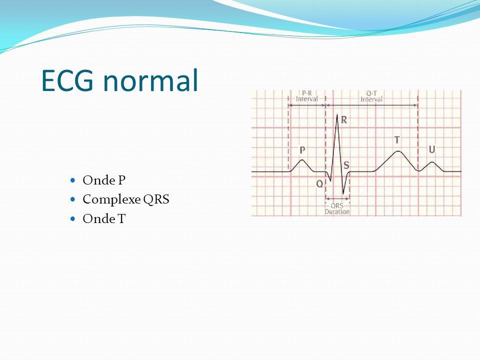 ECG normal Onde P Complexe QRS Onde T