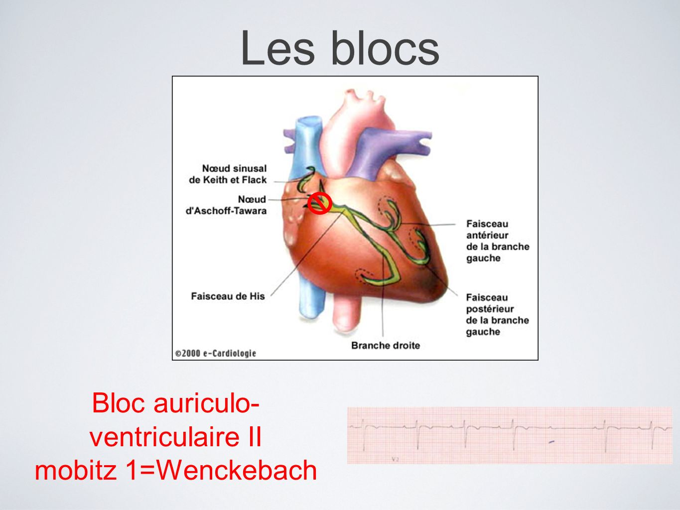 Bloc auriculo-ventriculaire II