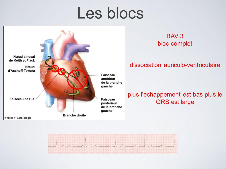 Les blocs BAV 3 bloc complet dissociation auriculo-ventriculaire