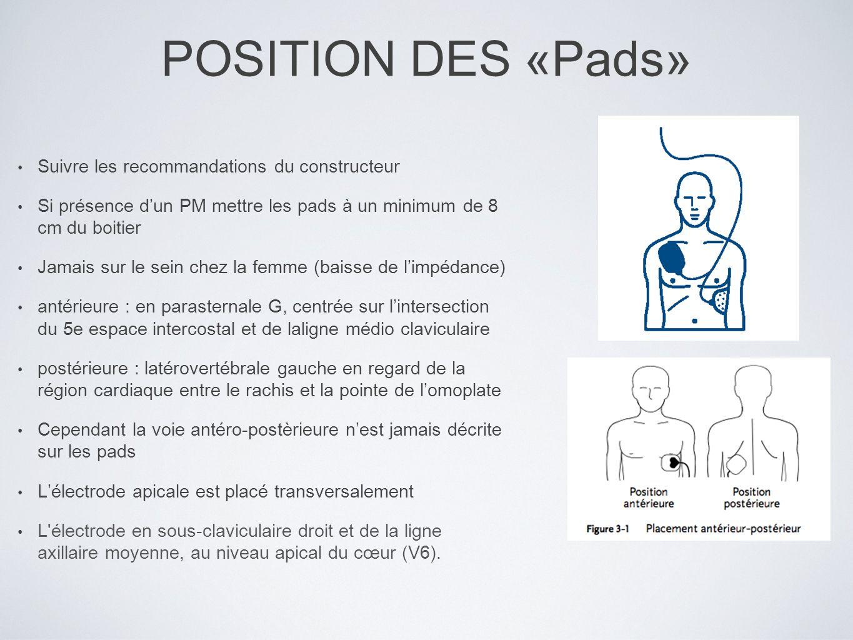 POSITION DES «Pads» Suivre les recommandations du constructeur