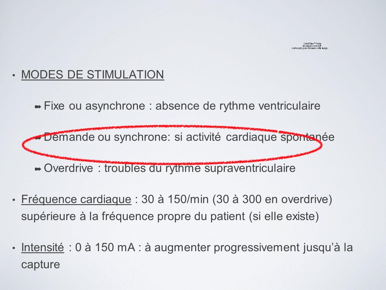 MODES DE STIMULATION Fixe ou asynchrone : absence de rythme ventriculaire. Demande ou synchrone: si activité cardiaque spontanée.