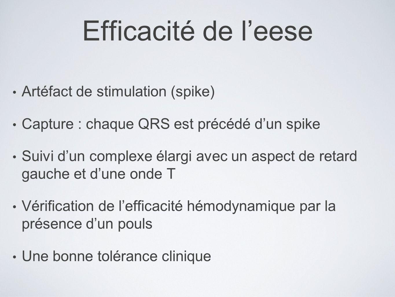 Efficacité de l'eese Artéfact de stimulation (spike)