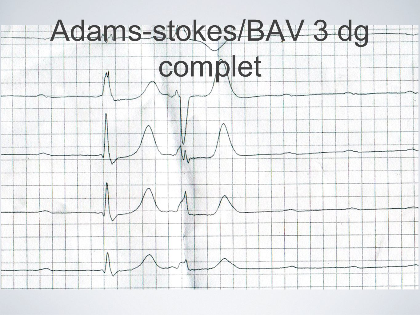 Adams-stokes/BAV 3 dg complet