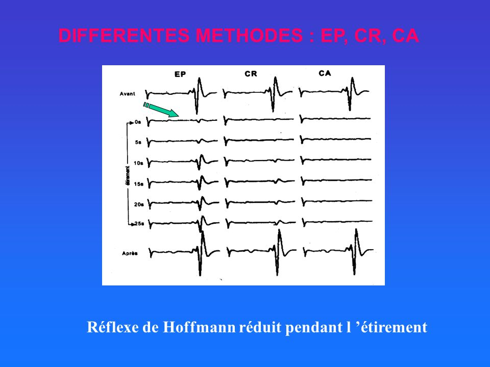 DIFFERENTES METHODES : EP, CR, CA