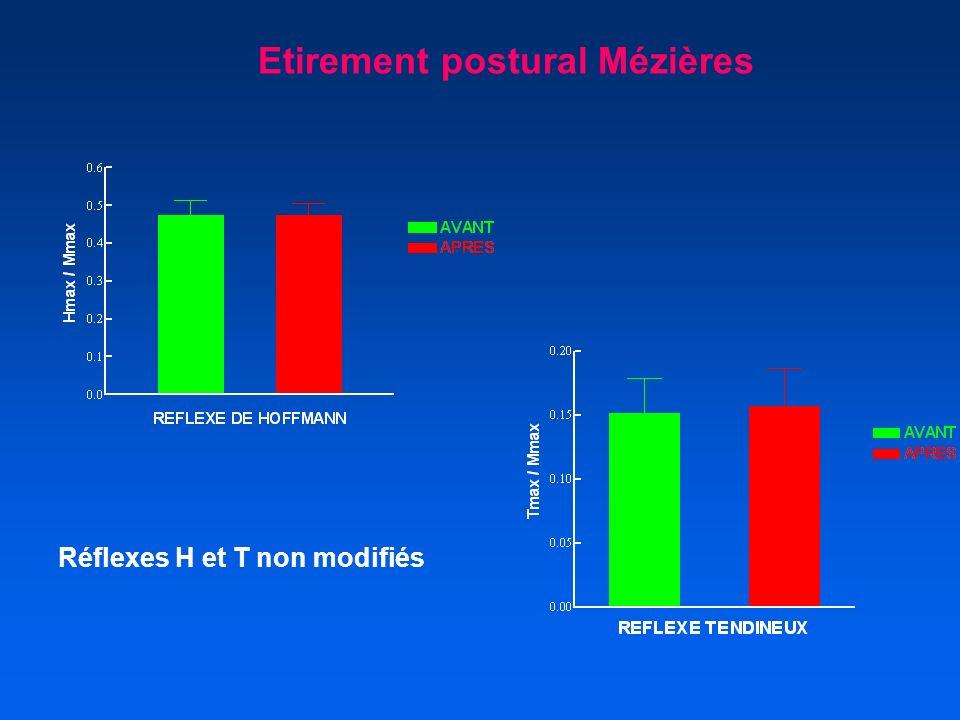 Etirement postural Mézières