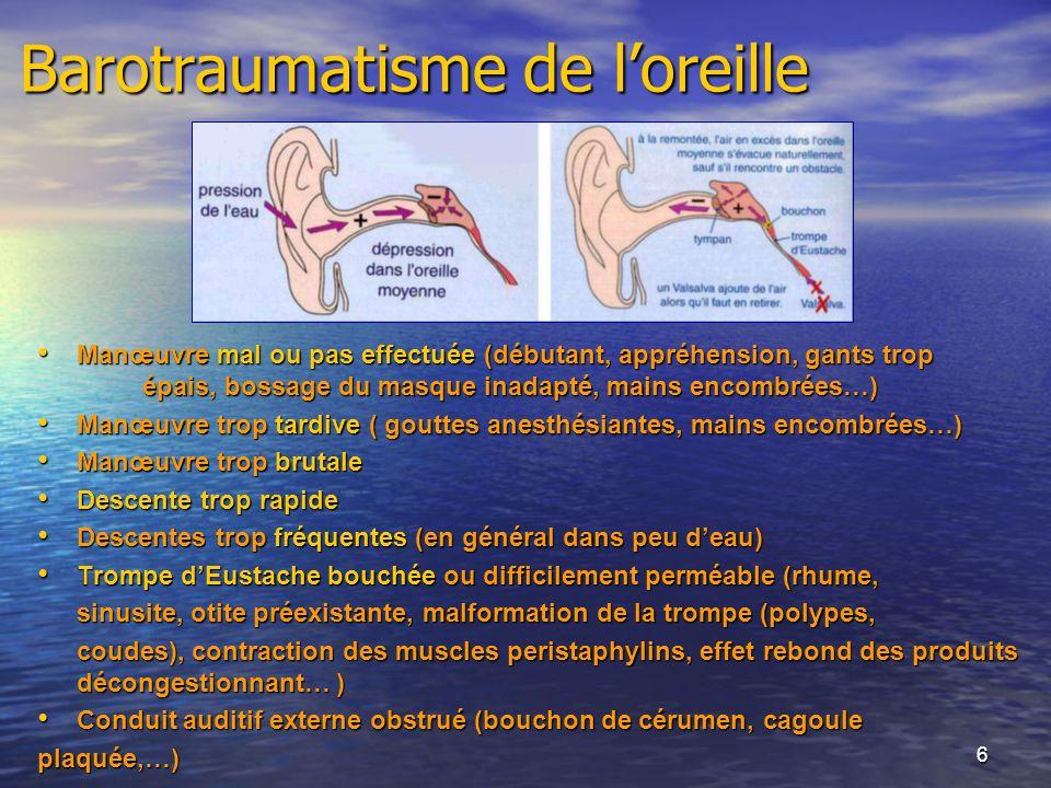 Barotraumatisme de l'oreille