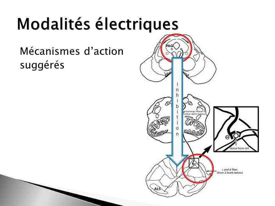 Modalités électriques