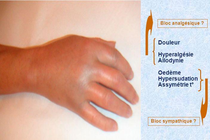 Douleur Hyperalgésie Allodynie Oedème Hypersudation Assymétrie t°