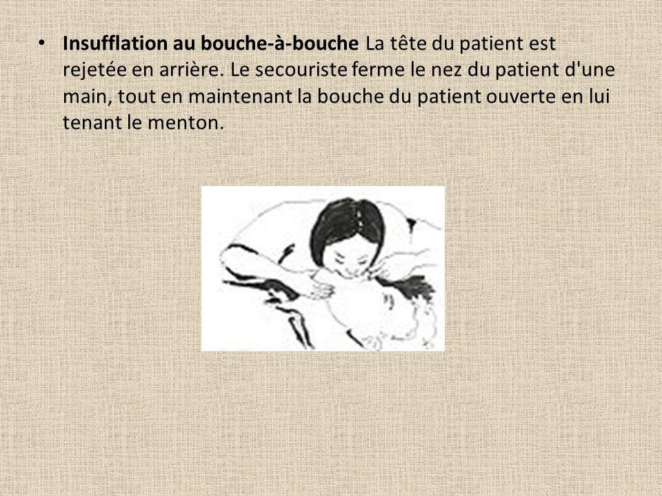 Insufflation au bouche-à-bouche La tête du patient est rejetée en arrière.