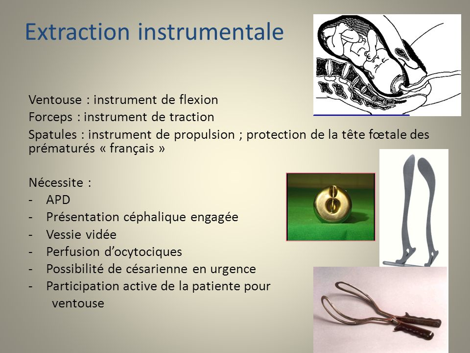 Extraction instrumentale