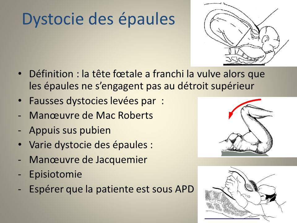 Dystocie des épaules Définition : la tête fœtale a franchi la vulve alors que les épaules ne s'engagent pas au détroit supérieur.