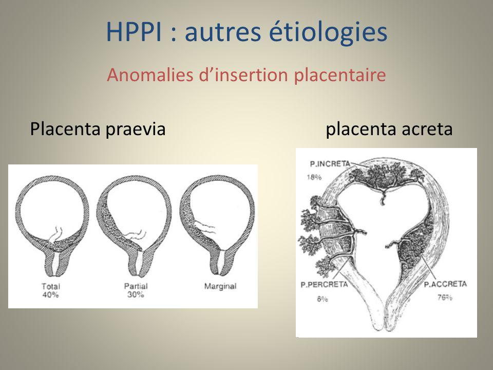 HPPI : autres étiologies
