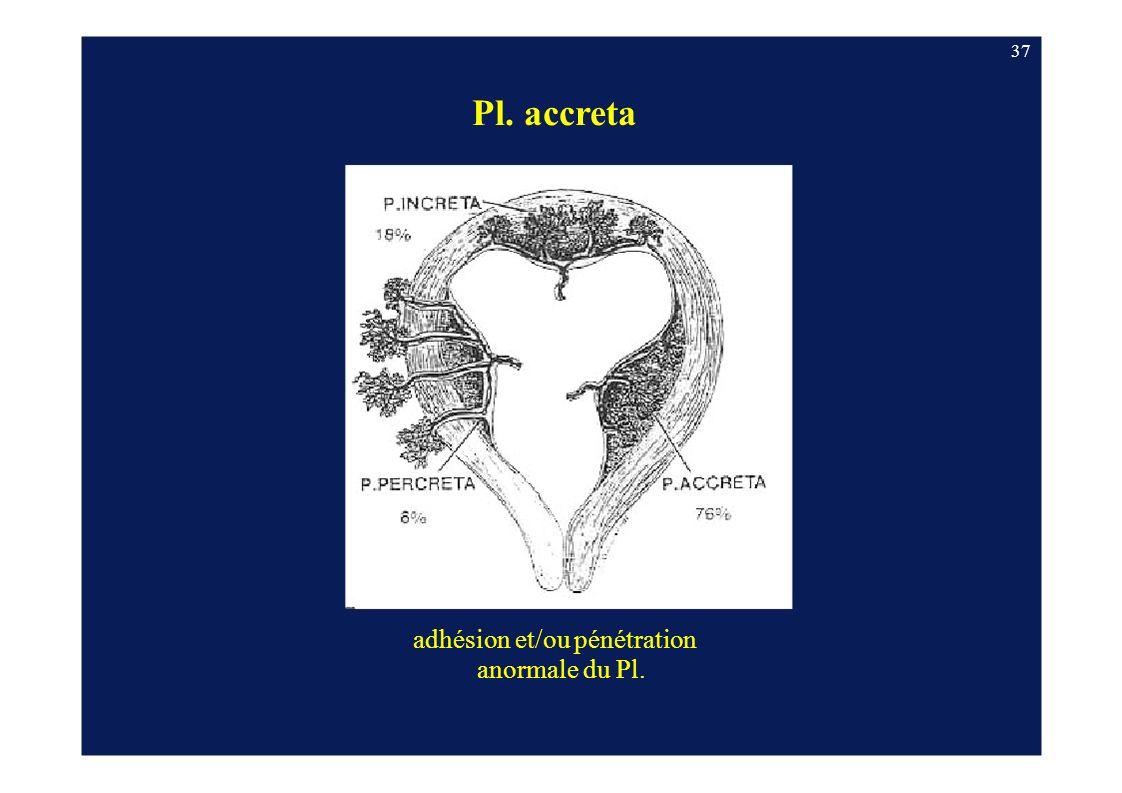 37 Pl. accreta adhésion et/ou pénétration anormale du Pl.