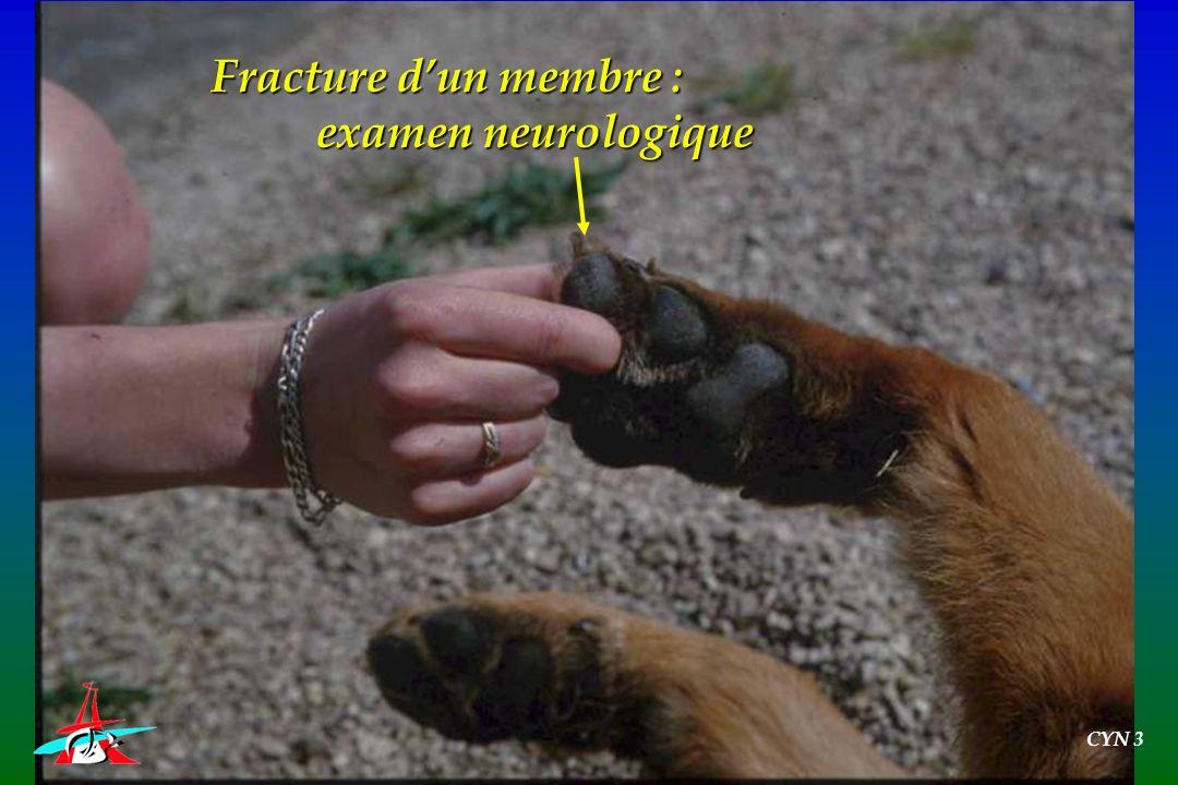 Fracture d'un membre : examen neurologique CYN 3