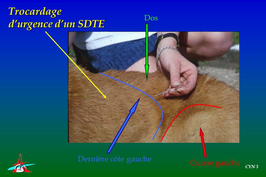 Trocardage d'urgence d'un SDTE Dos Dernière côte gauche Cuisse gauche