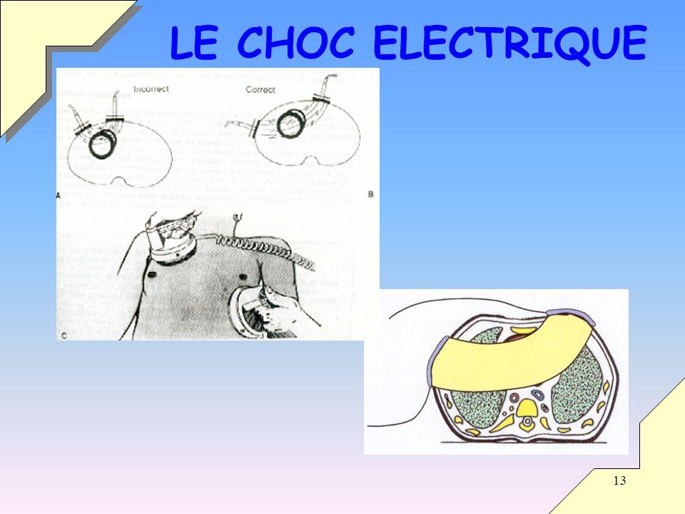LE CHOC ELECTRIQUE