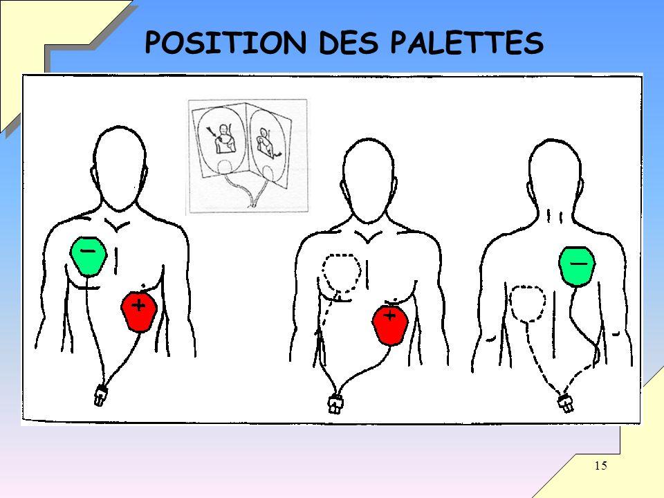 POSITION DES PALETTES