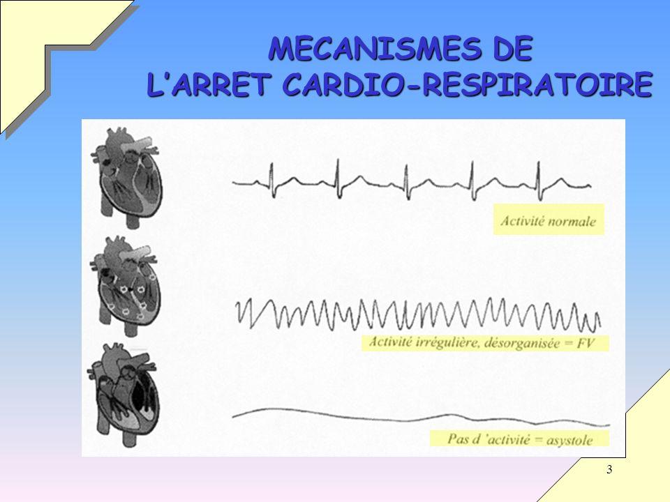 MECANISMES DE L'ARRET CARDIO-RESPIRATOIRE