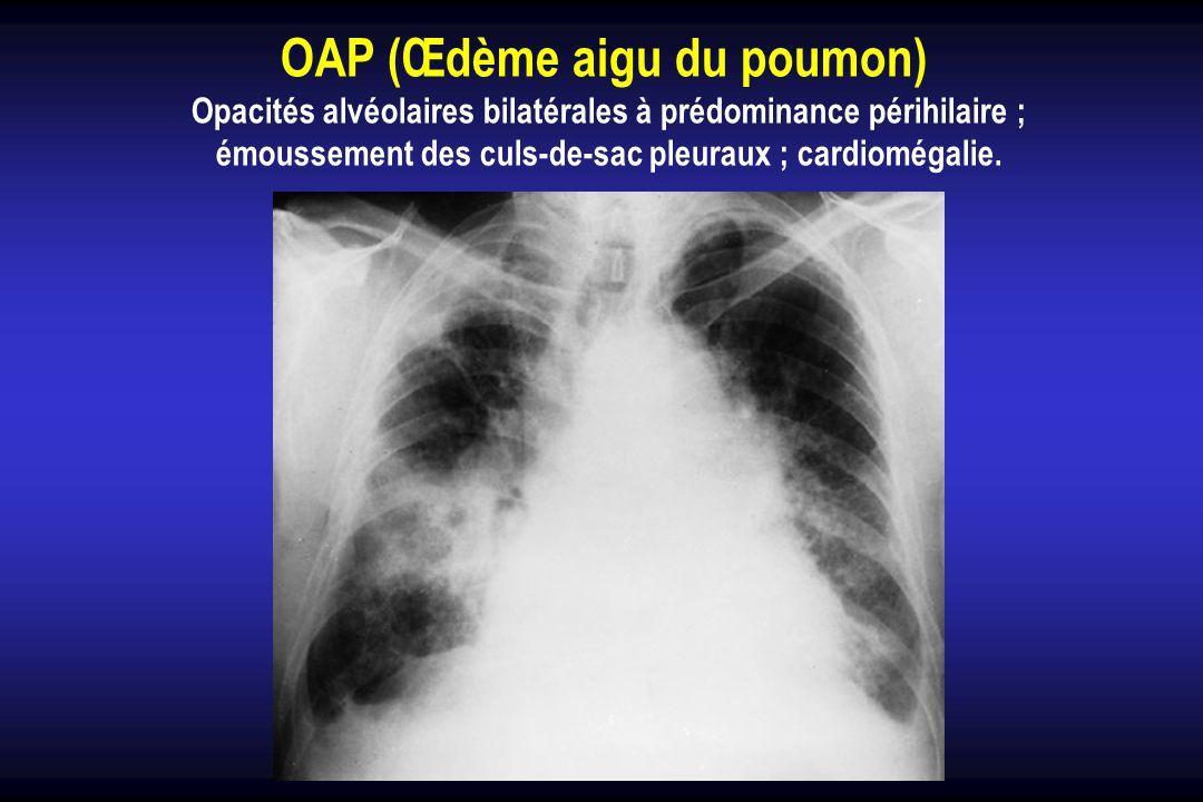 OAP (Œdème aigu du poumon)
