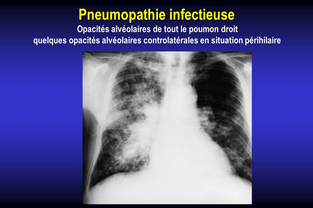 Pneumopathie infectieuse