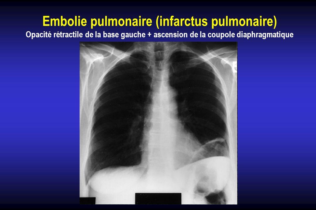 Embolie pulmonaire (infarctus pulmonaire)