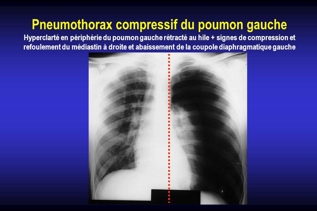 Pneumothorax compressif du poumon gauche