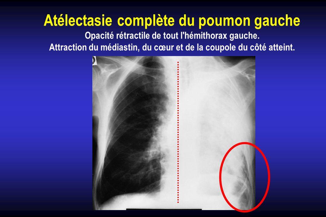 Atélectasie complète du poumon gauche