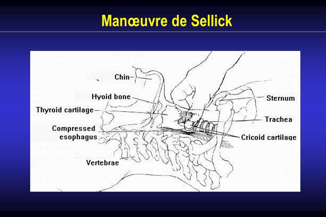 Manœuvre de Sellick
