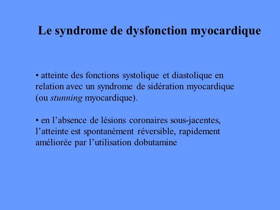 Le syndrome de dysfonction myocardique