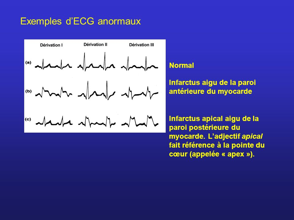Exemples d'ECG anormaux