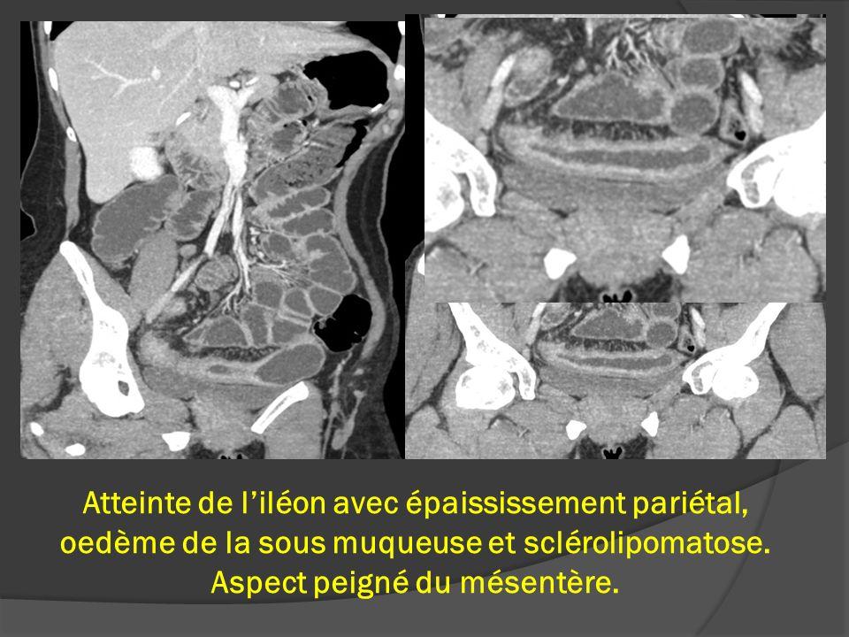Atteinte de l'iléon avec épaississement pariétal, oedème de la sous muqueuse et sclérolipomatose.