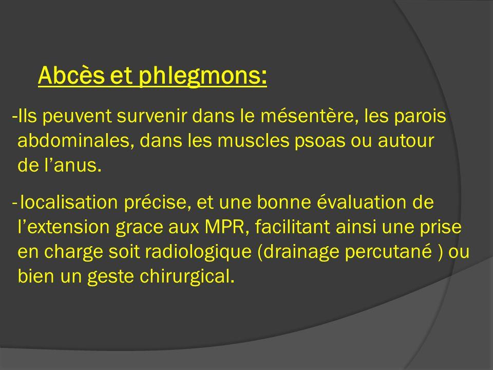 Abcès et phlegmons: -Ils peuvent survenir dans le mésentère, les parois abdominales, dans les muscles psoas ou autour de l'anus.