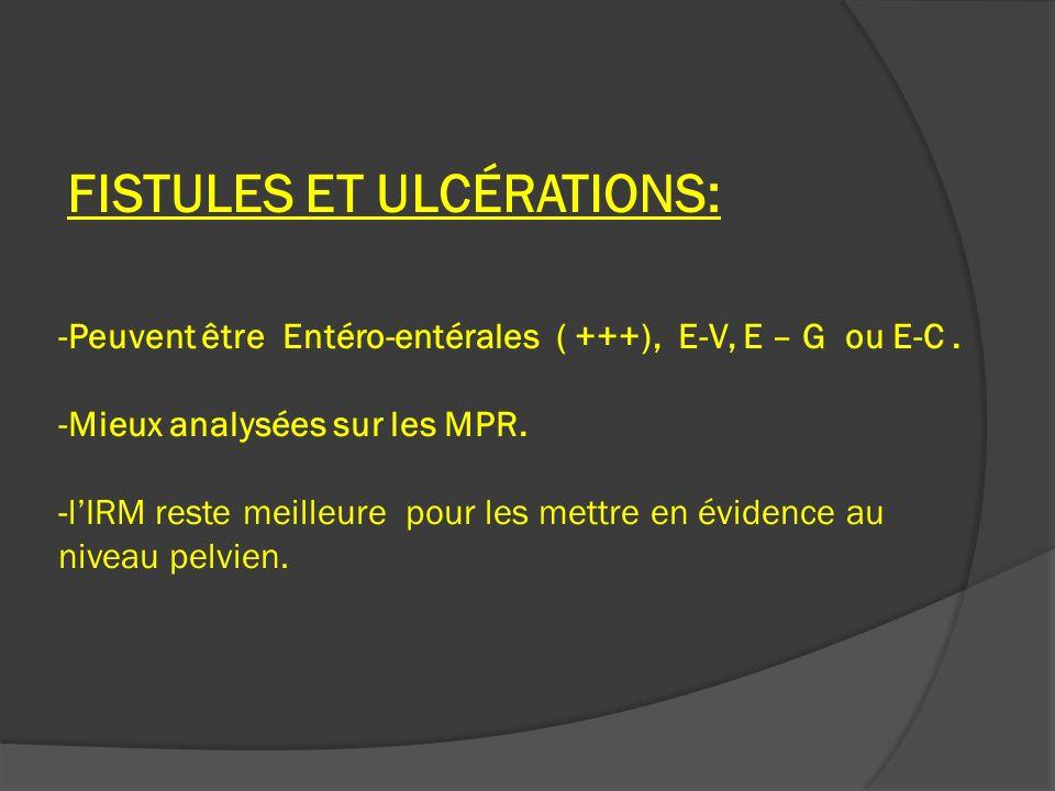 FISTULES ET ULCÉRATIONS: -Peuvent être Entéro-entérales ( +++), E-V, E – G ou E-C .