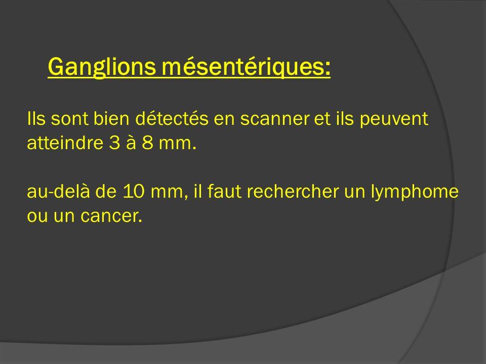 Ganglions mésentériques: Ils sont bien détectés en scanner et ils peuvent atteindre 3 à 8 mm.