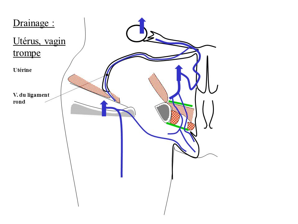 Drainage : Utérus, vagin trompe Utérine V. du ligament rond