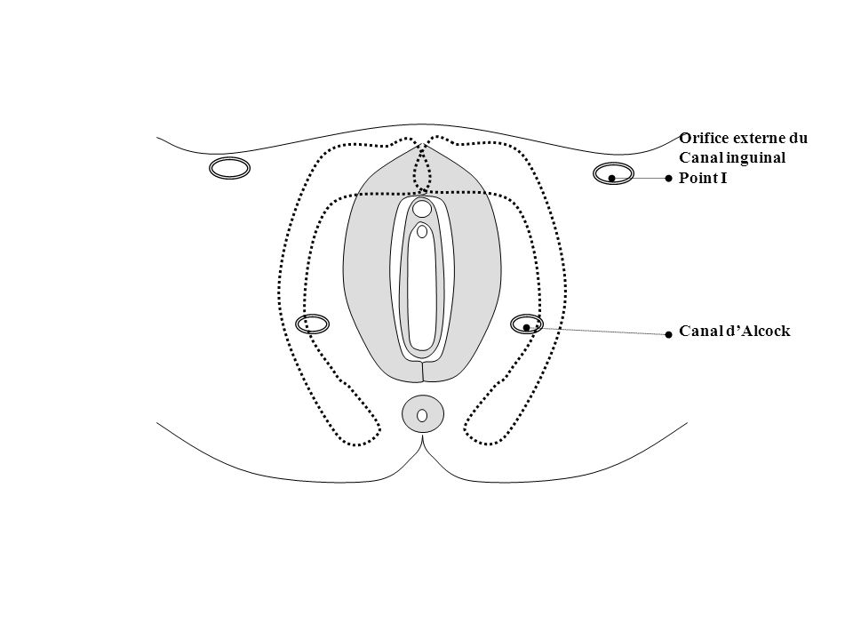 Orifice externe du Canal inguinal Point I