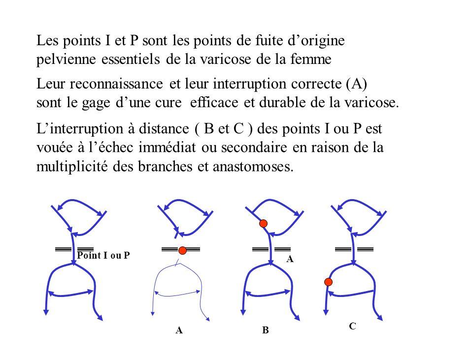 Les points I et P sont les points de fuite d'origine pelvienne essentiels de la varicose de la femme