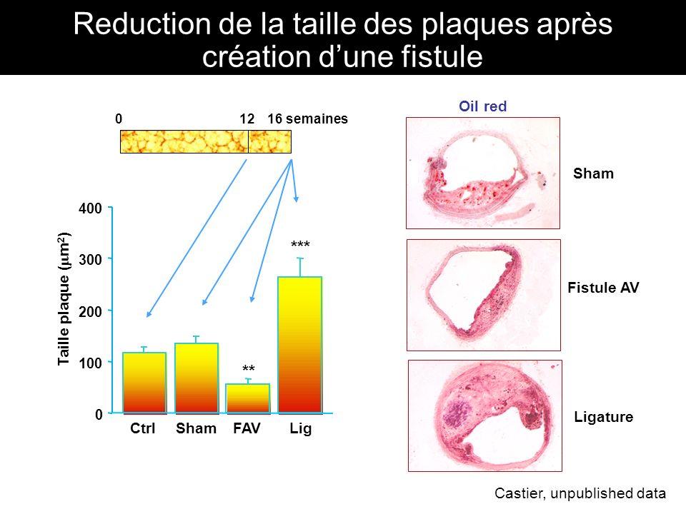 Reduction de la taille des plaques après création d'une fistule