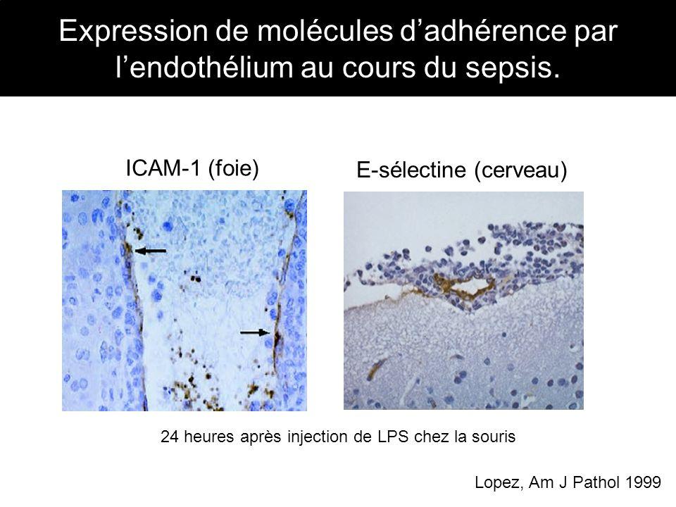 Expression de molécules d'adhérence par l'endothélium au cours du sepsis.
