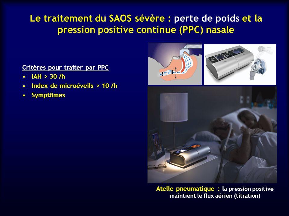 Le traitement du SAOS sévère : perte de poids et la pression positive continue (PPC) nasale