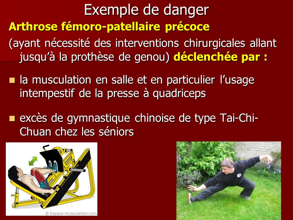 Exemple de danger Arthrose fémoro-patellaire précoce