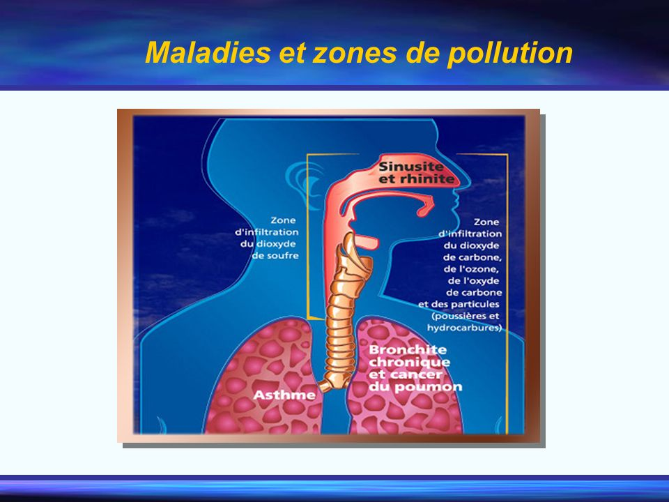 Maladies et zones de pollution