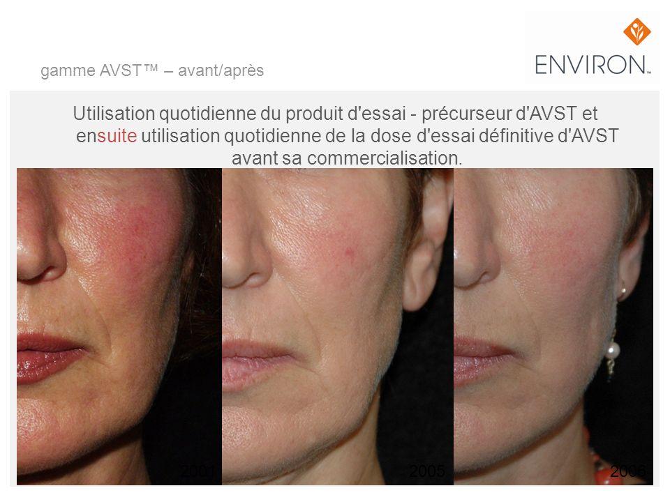gamme AVST™ – avant/après