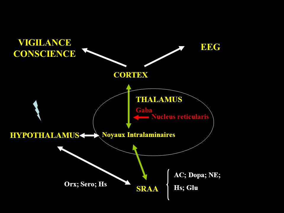 Noyaux Intralaminaires