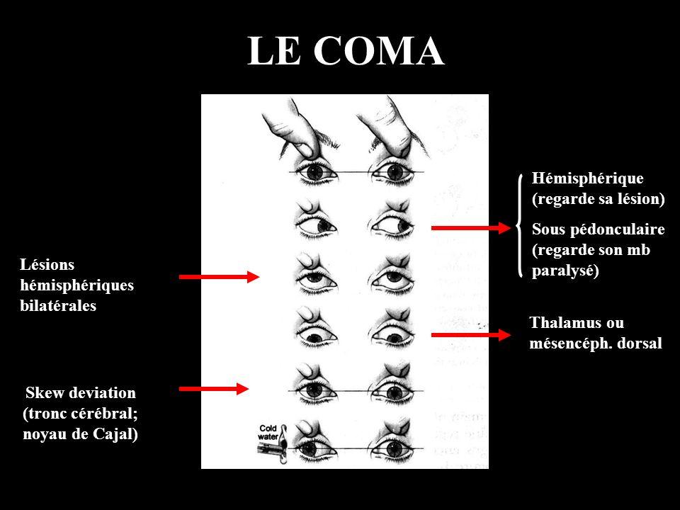 Skew deviation (tronc cérébral; noyau de Cajal)